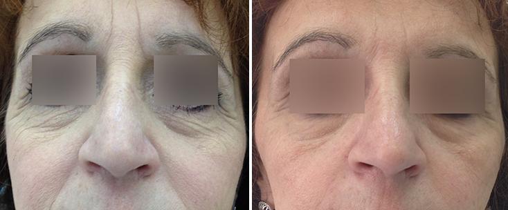 Фото до и после: Разглаживание морщин вокруг глаз и в межбровье гелем Glytone 2