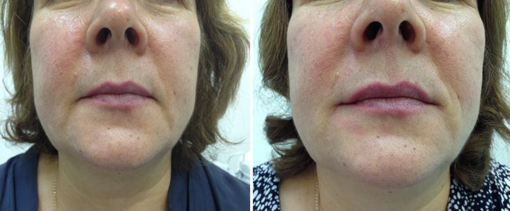 Фото до и после: Пластика лица (поднятие уголков губ + губоподбородочные складки) препаратом Yvoire