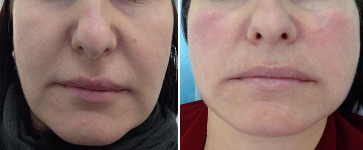 Фото до и после: Объемная контурная пластика щек и периоральной области