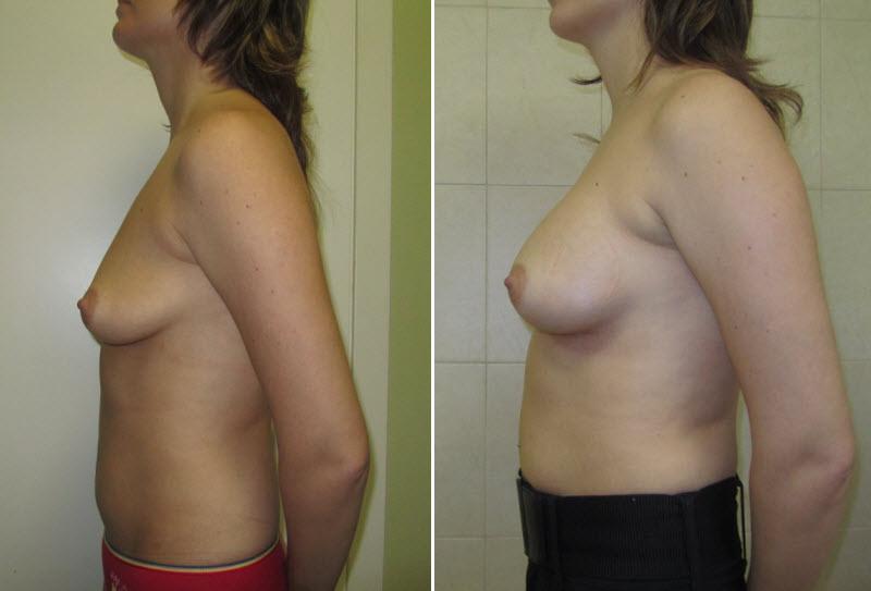 Фото: увеличение груди - Галерея 6