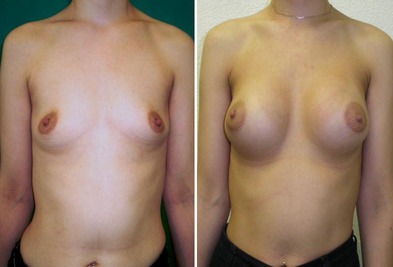 Фото: увеличение груди - Галерея 5