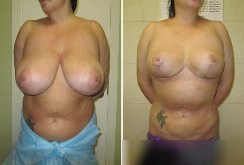 Фото до и после: уменьшение груди