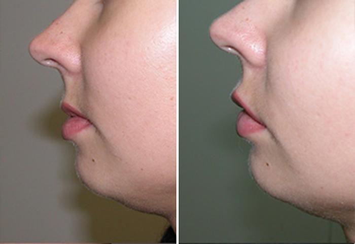 Фото до и после: липофилинг лица