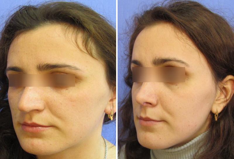 Фото до и после: пластика носа - Галерея 5