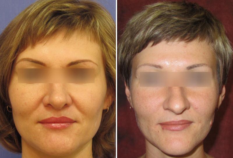 Фото до и после: пластика носа - Галерея 4