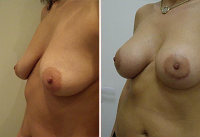 Фото до и после: Подтяжка груди - Галерея 1