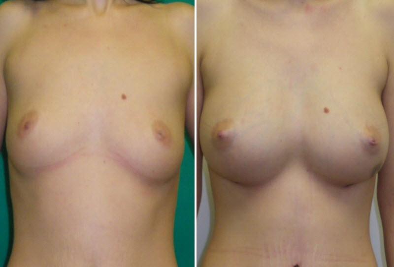 Фото: увеличение груди - Галерея 2