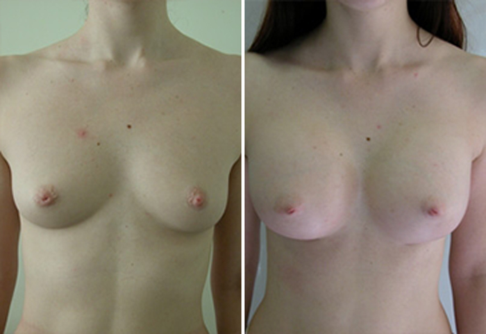 Фото: увеличение груди - Галерея 1