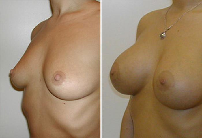 Фото: увеличение груди - Галерея 3