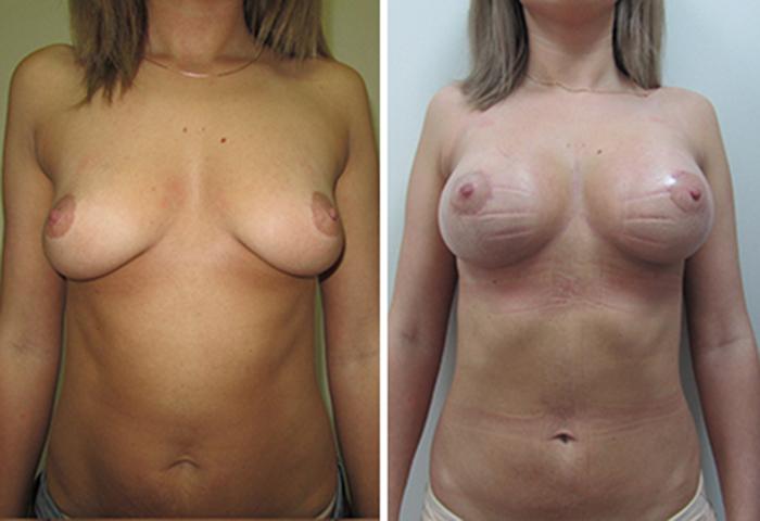 Фото до и после: Подтяжка груди - Галерея 2