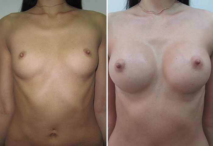 Фото: Увеличение груди - Галерея 12