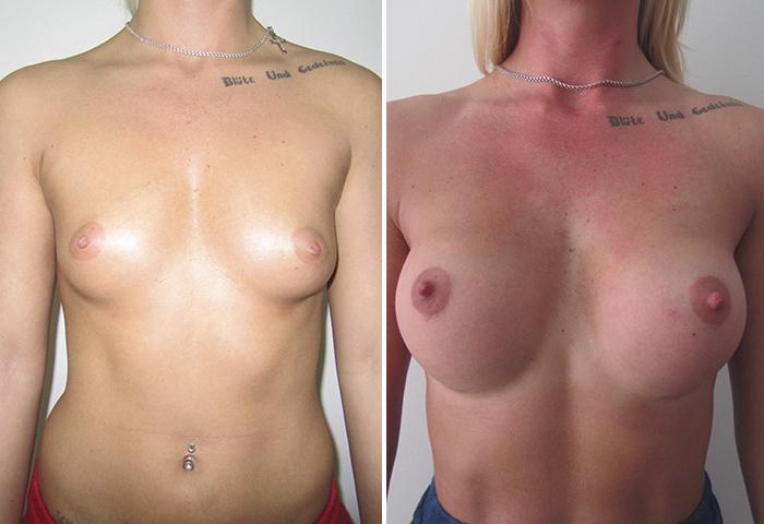 Фото: Увеличение груди - Галерея 11