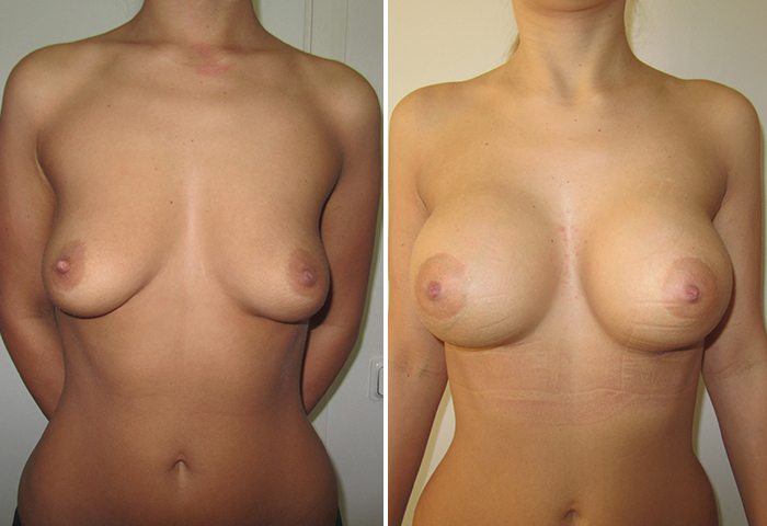 Фото до и после: Подтяжка груди - Галерея 3