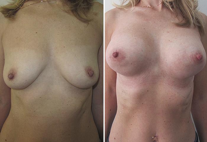 Фото: Увеличение груди - Галерея 10