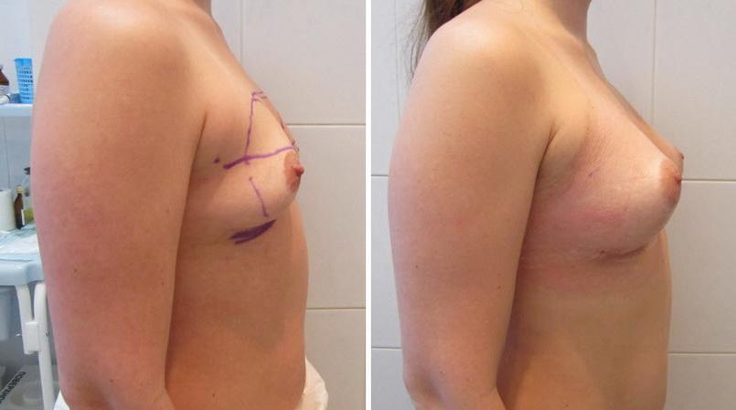 Фото: увеличение груди - Галерея 8
