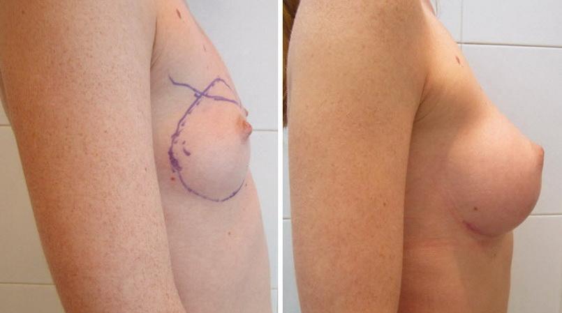 Фото: увеличение груди - Галерея 7