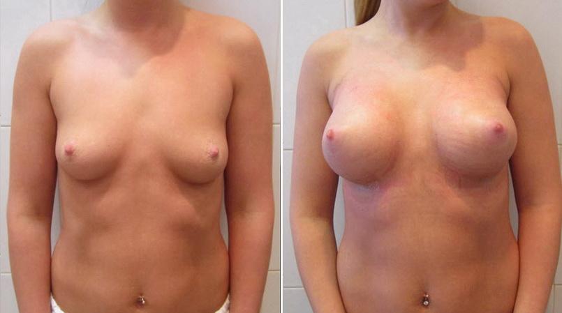 Фото: увеличение груди - Галерея 9