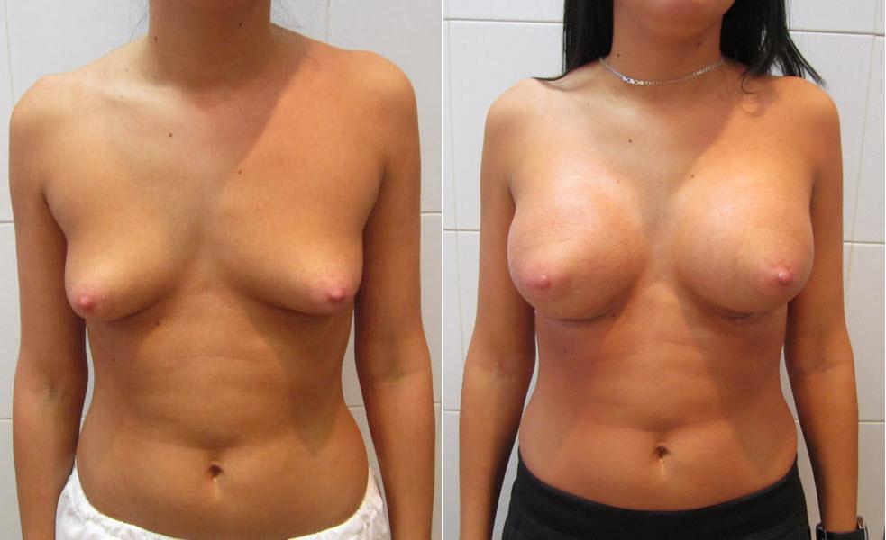 Фото: увеличение груди - Галерея 13