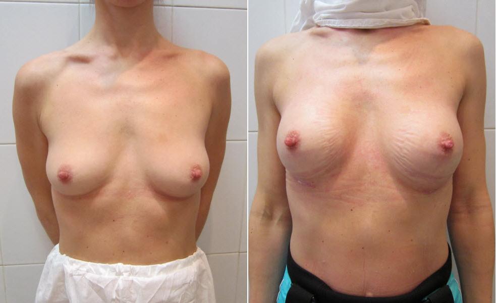 Фото: увеличение груди - Галерея 14