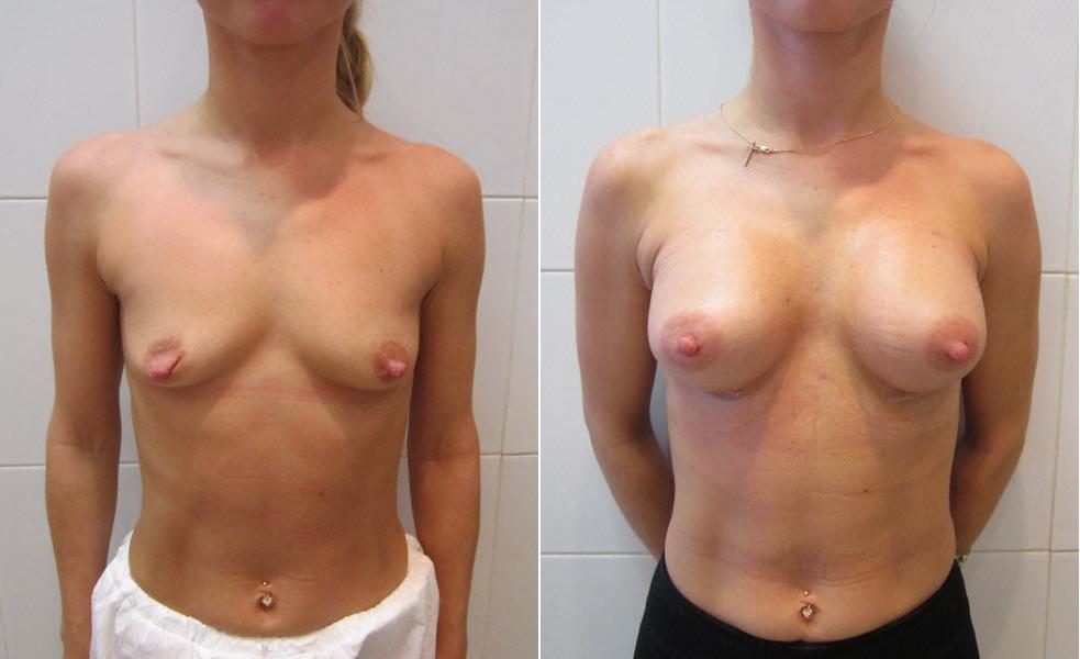 Фото: увеличение груди - Галерея 15