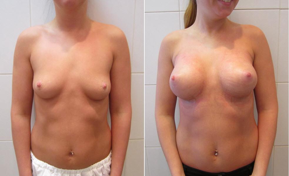 Фото: увеличение груди - Галерея 16