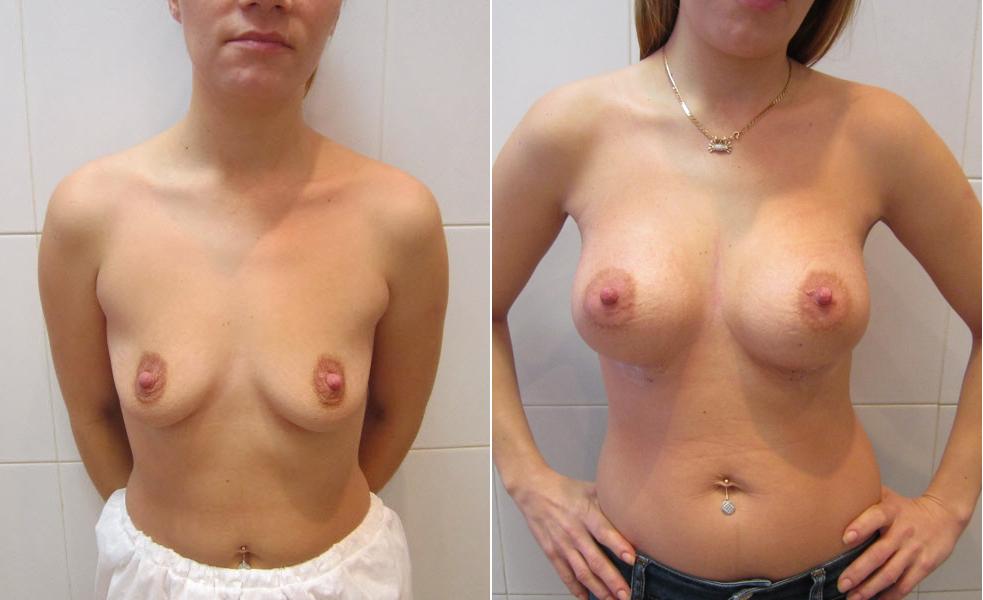 Фото: увеличение груди - Галерея 17