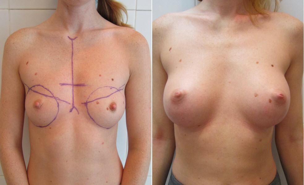 Фото: увеличение груди - Галерея 18