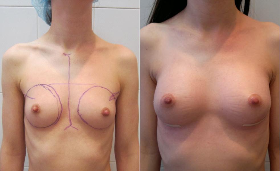 Фото: увеличение груди - Галерея 19