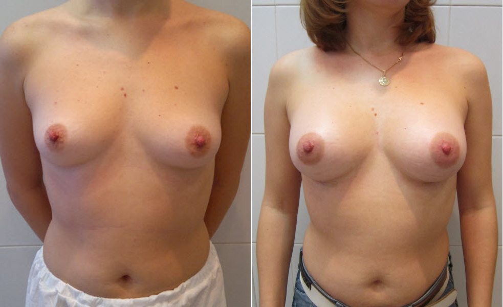 Фото: увеличение груди - Галерея 20