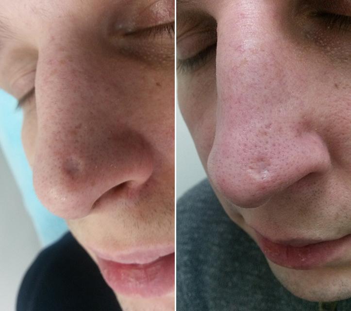 Фото до и после: Нос (коллост)