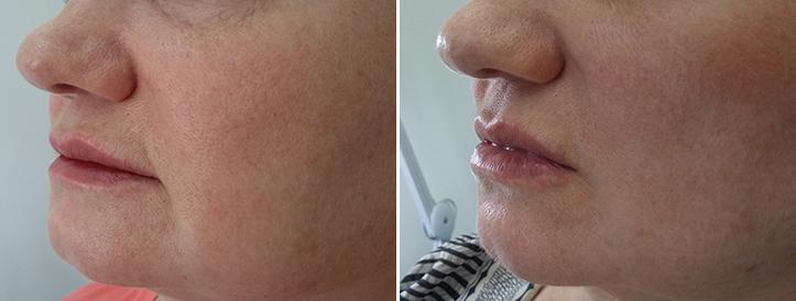 Фото до и после: Пластика губ (гель Glytone 3)