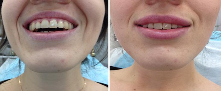 Фото до и после: Пластика губ (гель Belotero Intense)
