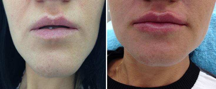 Фото до и после: Пластика губ (гель Filorga X-HA 3)