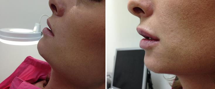 Фото до и после: Пластика губ (гель Glytone)