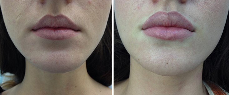 Фото до и после: Пластика губ (гель Juvederm ultra)