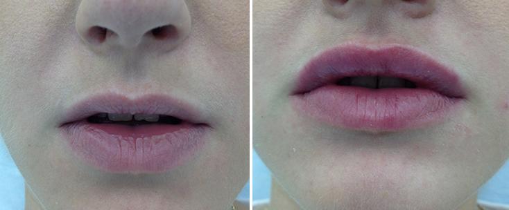 Фото до и после: Пластика губ (гель Surgiderm)