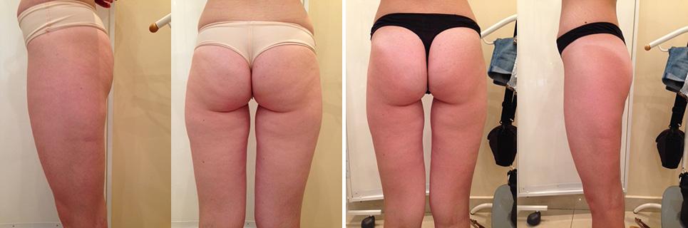 Фото до и послен: массаж по телу