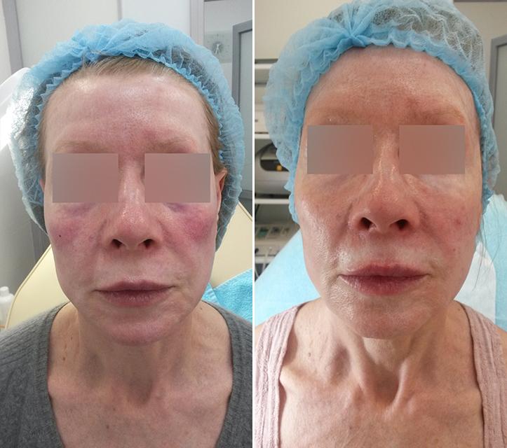 Фото до и после: Векторный лифтинг гелем Glytone 2 и Glytone 3, препаратом Belotero Soft в области носа