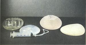 Развитие имплантантов груди