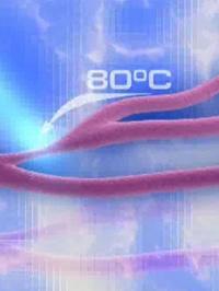 Термокоагуляция вен и сосудов
