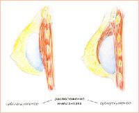 Правильные подход к увеличению груди