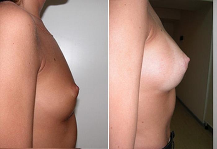 Женщины с маленькой грудью особенности