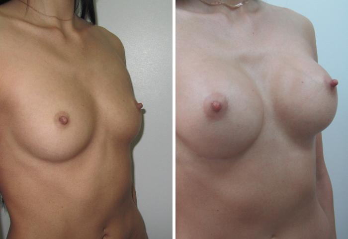 Как делается пластическая операция на грудь