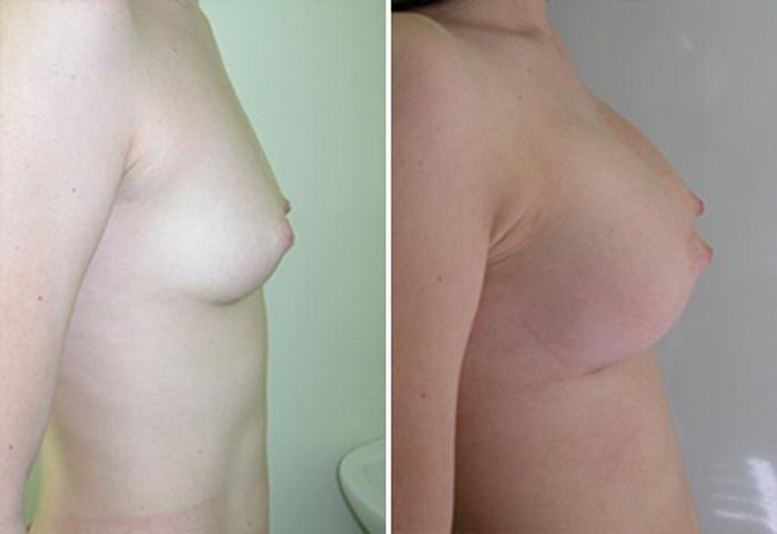 Что увеличивает размер груди