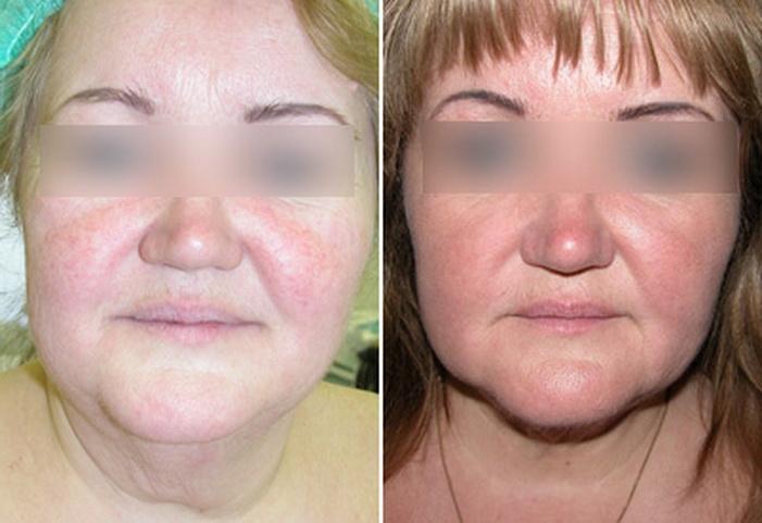 липосакция подбородка фото до и после отзывы
