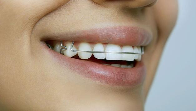 принцип исправления зубов брекетами