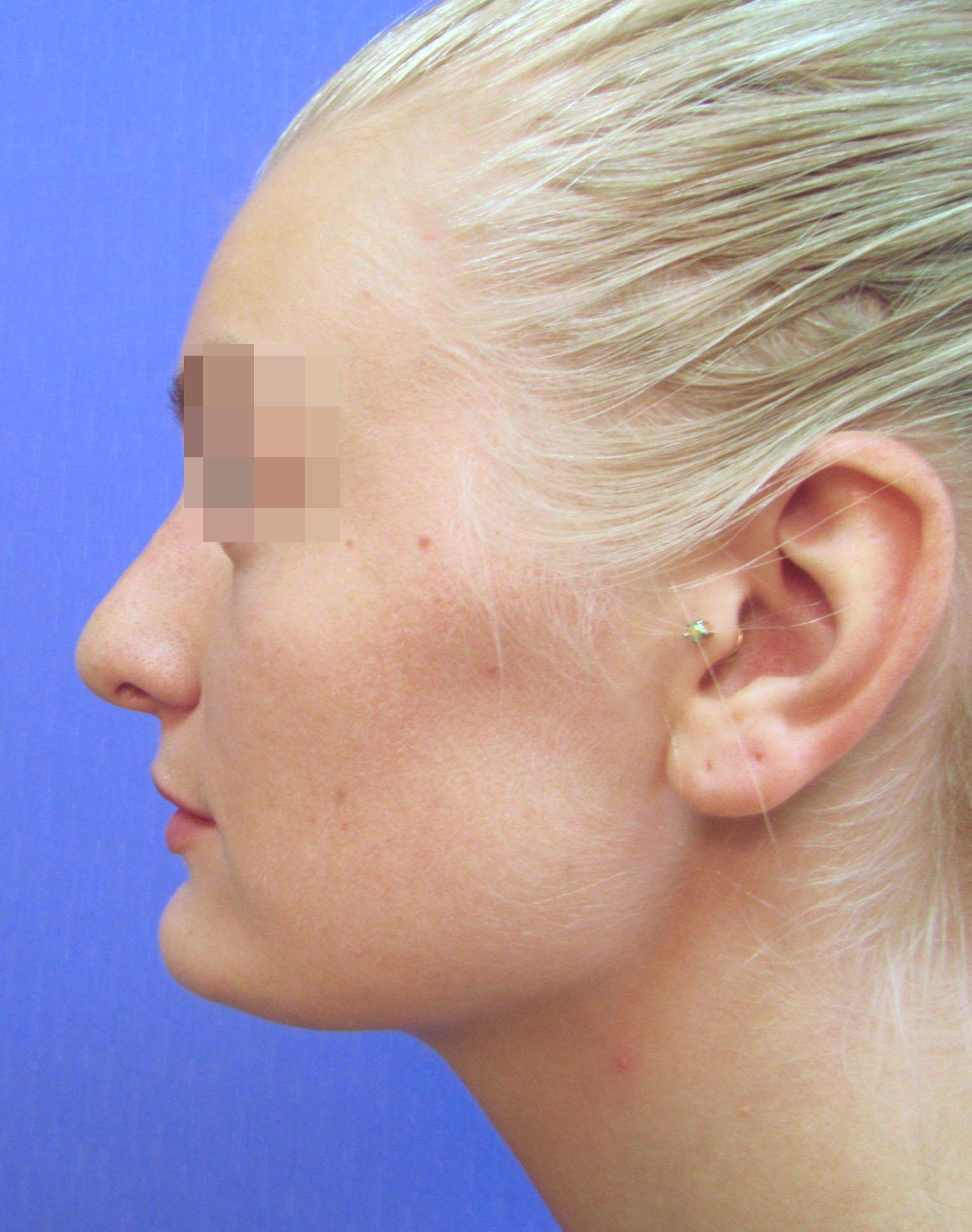 Ринопластика носового хряща