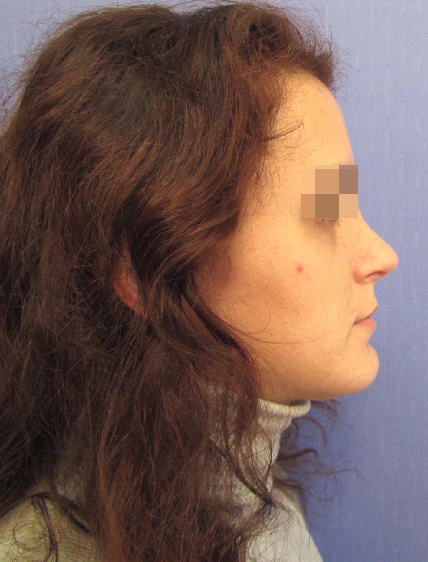 Ринопластика широкого кончика носа отзывы