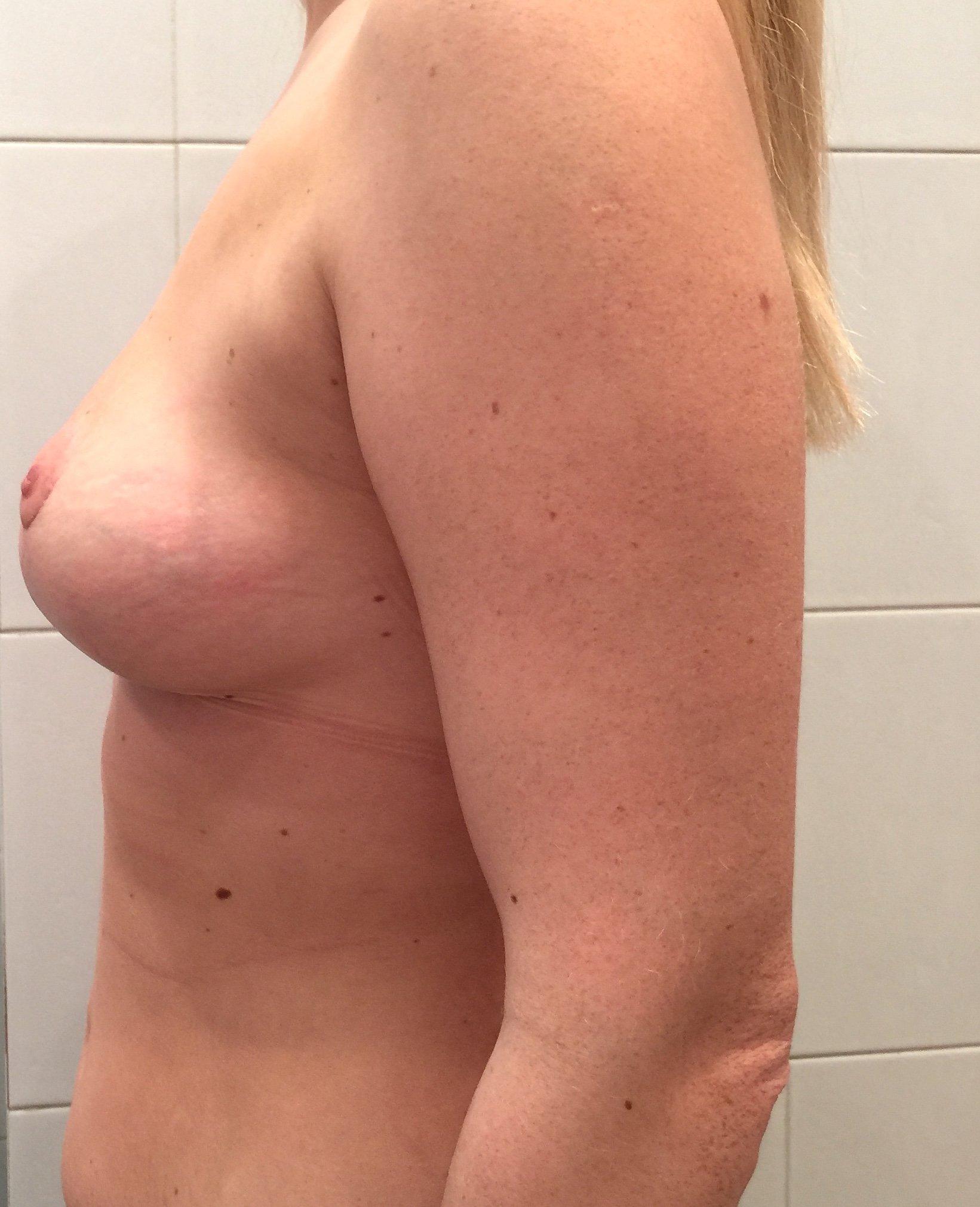 Сколько стоит грудной имплант