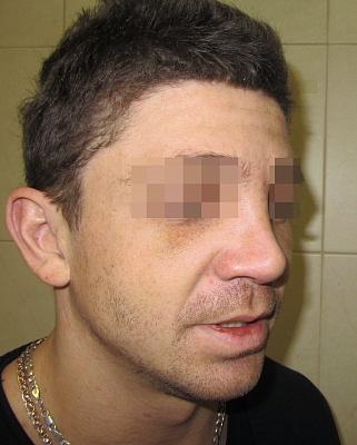 Ринопластика носа саратов цены